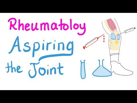 Rheumatology...Joint Fluid Analysis (Physiology)