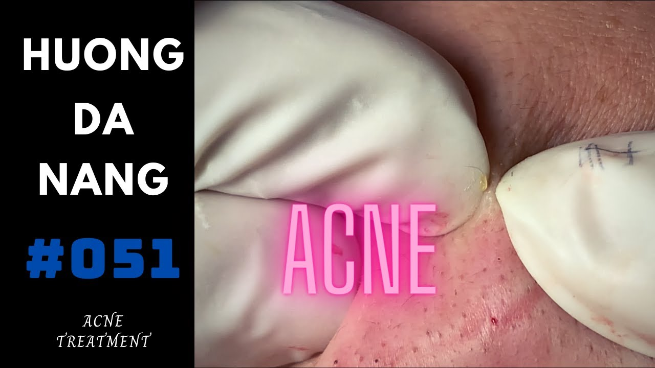 #051 | Get ACNE for Nam | Being recorded before the demand for Social distancing in Da Nang