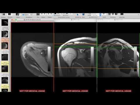 Systematic Interpretation of Shoulder MRI: How I do it