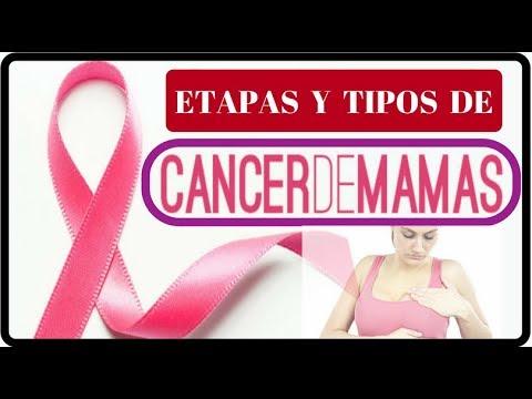 Etapas Del Cancer De Mamas | Tipos De Cancer De Mamas | CANCER DE MAMAS |Salud De Hoy