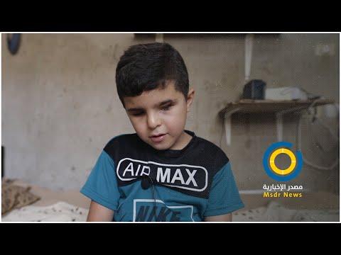 الطفل محمد شعبان من بيت لاهيا فقد بصره كاملاً إثر إصابته خلال العدوان الأخير على غزة