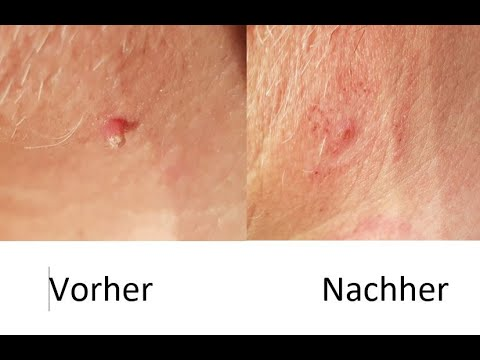 Hautüberschuss Entfernen Hautanhängsel Sanft Entfernen Stielwarzen Selbst Entfernen Fibrom Entfernen Youtube