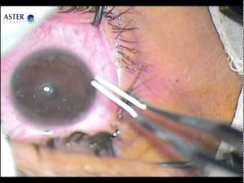 Corneal Collagen Cross linking with Riboflavin C3R by Dr  Manoj Rai Mehta at Dr Mehtaeyecare, Delhi