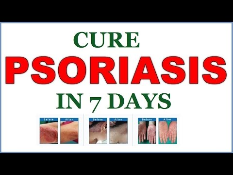 Cure Psoriasis in 7 days - How To Cure Psoriasis - Psoriasis Treatment