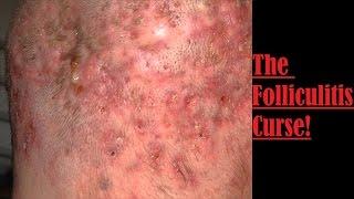 The Folliculitis Curse!