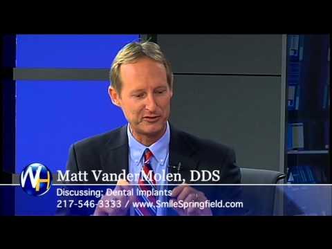 Dental Implants, Matt VanderMolen DDS, Springfield, IL
