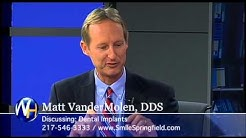 Dental Implants, Matt VanderMolen DDS, Springfield, IL