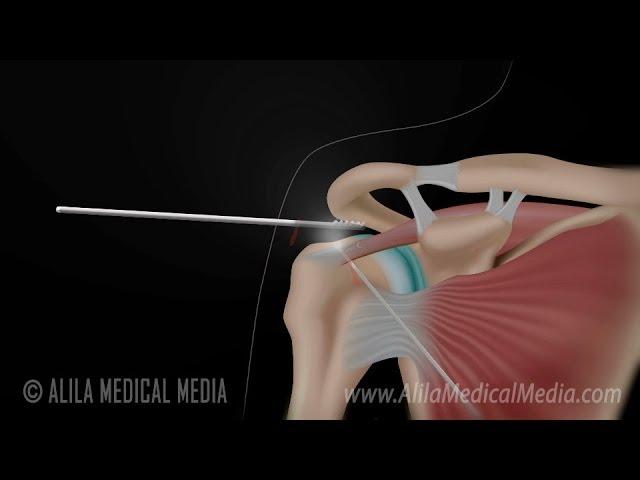 Arthroscopic Rotator Cuff Repair Surgery Animation.