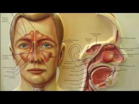 Лекарства для лечения гайморита: какие препараты