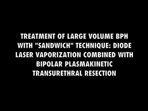 laserbehandlung prostata