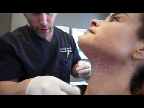 Kybella / Double Chin / Neck Fat / Skin Tightening / Los Angeles California
