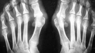 отек ног при подагре. убрать косточку на ноге операция