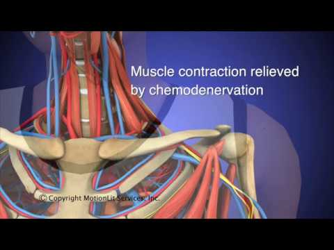 Thoracic Outlet Syndrome (TOS) Animation HD