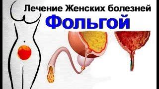 Женское здоровье. Лечение фольгой. Цистит эрозии киста. Фольга и гинекология. Как лечить женщин(, 2017-12-09T16:00:02.000Z)