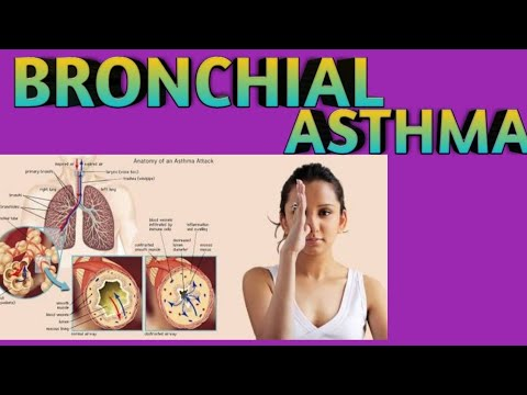 Bronchial asthma in hindi , definition, causes , symptoms ...