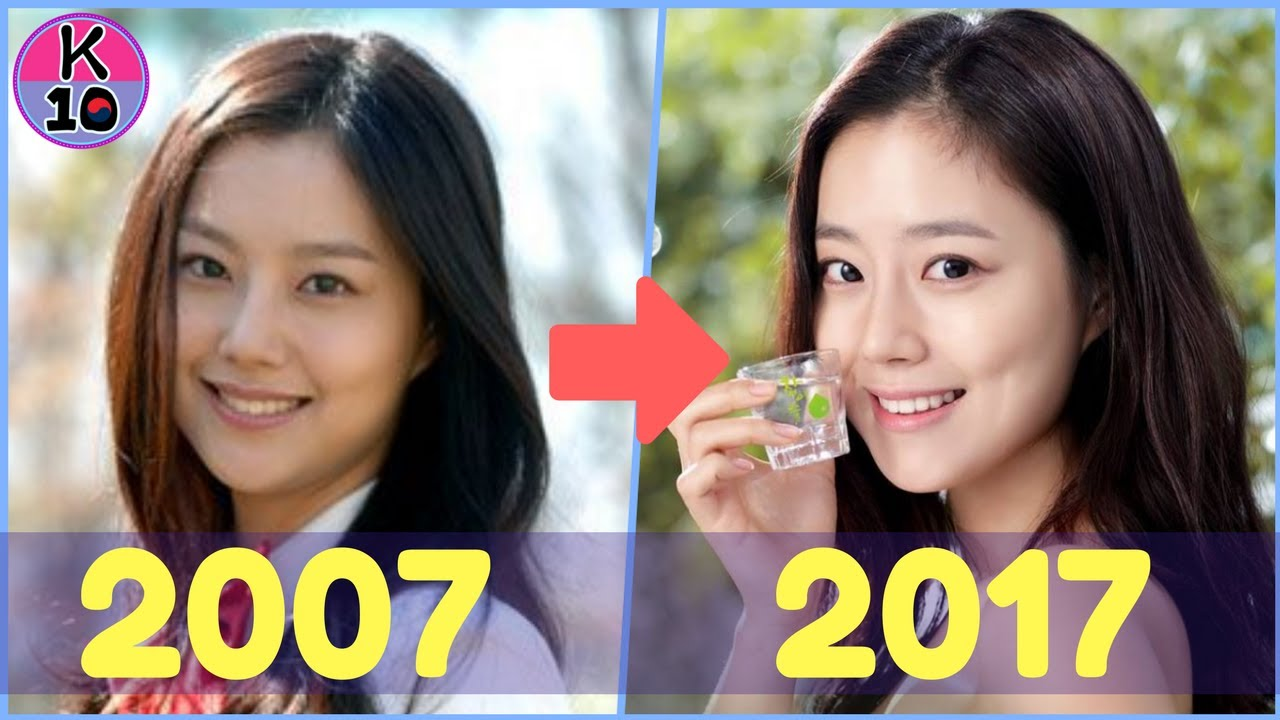 Moon chae won dating song joong ki plastic surgery