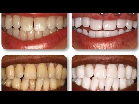 Dentes Brancos Em 1 Minuto Receita Caseira E Inedita Youtube