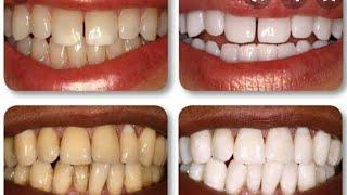 Como Clarear os Dentes Na Hora, Eliminar Tártaro e Gengivite
