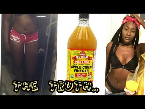 Apple Cider Vinegar Weight Loss 30 Days No Exercise Before