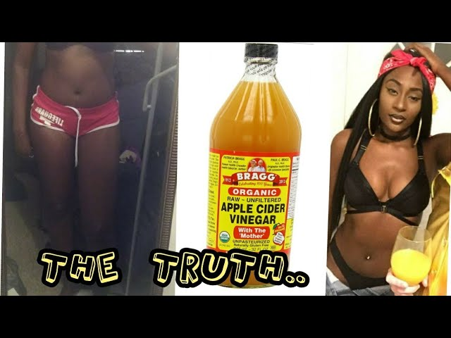 Apple Cider Vinegar Weight Loss 30 Days No Exercise Before After Pictures