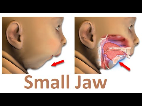 what is the main reason of small jaw (micrognathia) by prof john, Skeleton