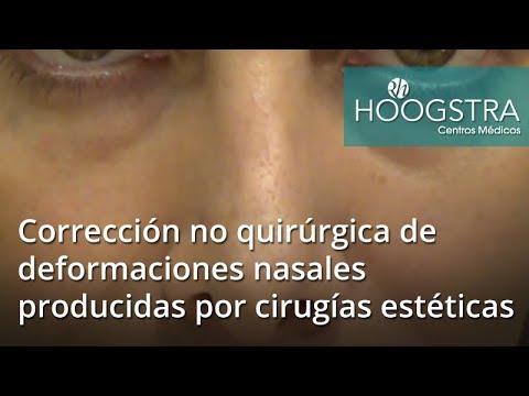 Corrección no quirúrgica de deformaciones nasales producidas por cirugías Estéticas (18101)