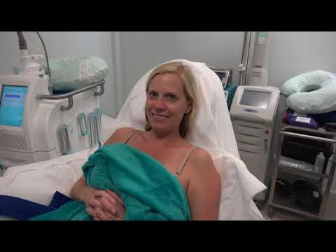Orlando CoolSculpting Patients Describe Their Experience