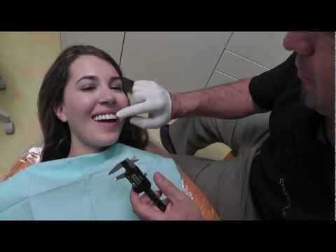 One Day Smile Makeover Cosmetic Dentistry Cerec Veneer