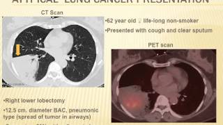 Microbiology and the Pathogenesis of Lung and Other Cancers