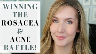 HOW I GOT RID OF ROSACEA AND ADULT ACNE   Products + Tips + Lifestyle Changes   My Story