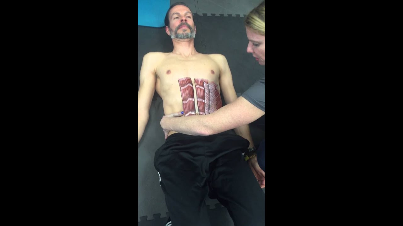 Diastasis recti in adult males