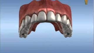 Santral Diş Eksikliğinde İmplant Köprü 43