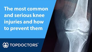 The most common and serious knee injuries and how to prevent them