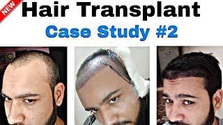 Case Study : 3 Months Hair Transplant Result Timeline || Best Hair Transplant Result In India