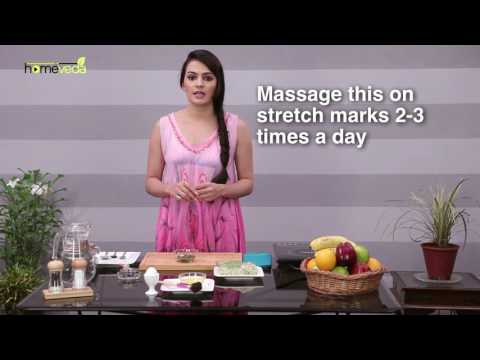 How to get rid of stretch marks with natural home remedies | Femina in