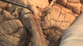 The Most Important Pathway: Motor Control: Neuroanatomy Video Lab - Brain Dissections