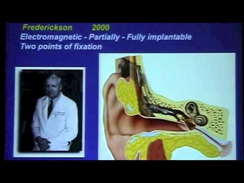 Middle ear implants Brasil 2008