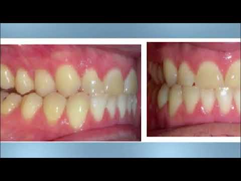 Kentucky Orthodontics & Invisalign: LeFort Osteotomy Surgery