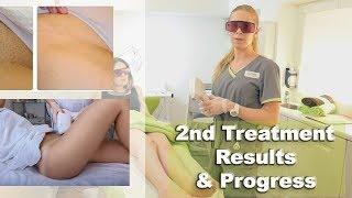 Baixar Laser Hair Removal What To Expect - Bikini Brazilian Treatment