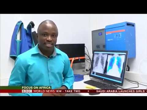 BBC reports on Delft's tuberculosis screening project in Ghana