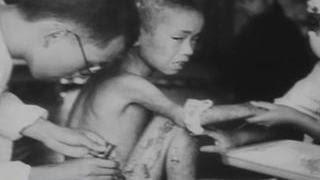 """70 тысяч сгорели мгновенно. Американцы называли жертв Хиросимы """"морскими свинками"""""""
