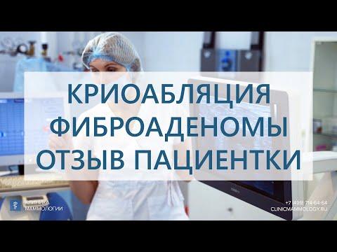 Фиброаденома. Криоабляция фиброаденомы. Отзыв пациентки после удаления фиброаденомы.