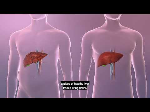 UPMC Living-Donor Liver Transplant