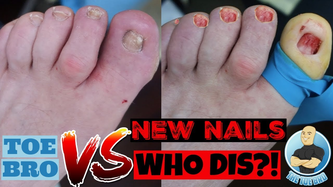 CAUSE OF AND CURE FOR THICK TOENAILS - FULL EXPLANATION & TREATMENT ...