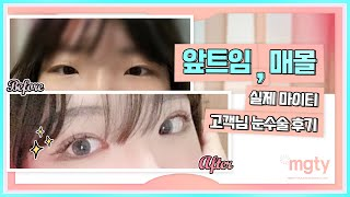 매몰쌍꺼풀+앞트임 고객 전후사진과 후기