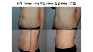 튼살제거 처진뱃살 복부성형