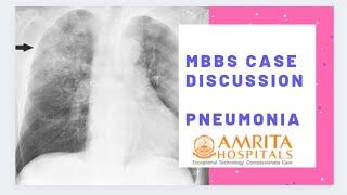 MBBS Case Discussion || Pneumonia