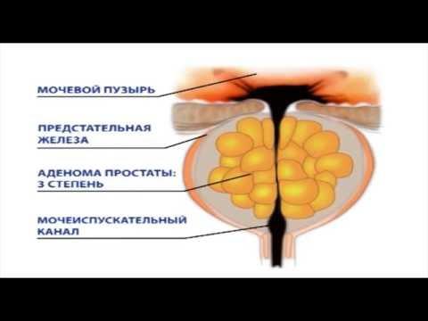 Гиперплазия предстательной железы: причины, симптомы, лечение