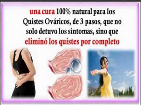 Quistes De Ovario Simples Riesgos Y Tratamiento Para Curarlos