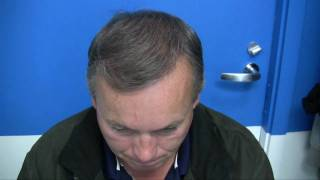Hair Transplant Cost - Affordable prices with financing options